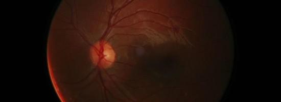 digital-retine-photography